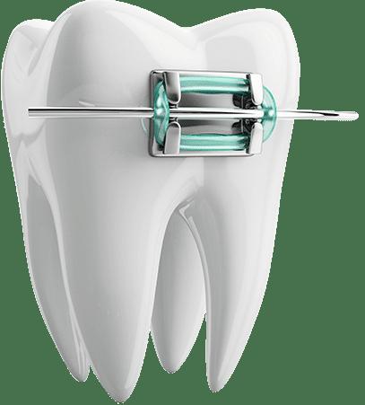 Incognito-braces