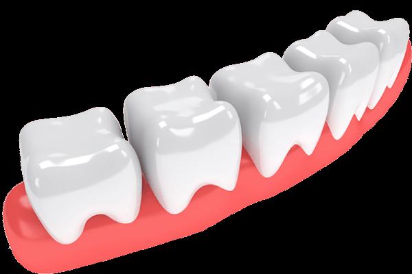 Why did I Loss My Teeth?