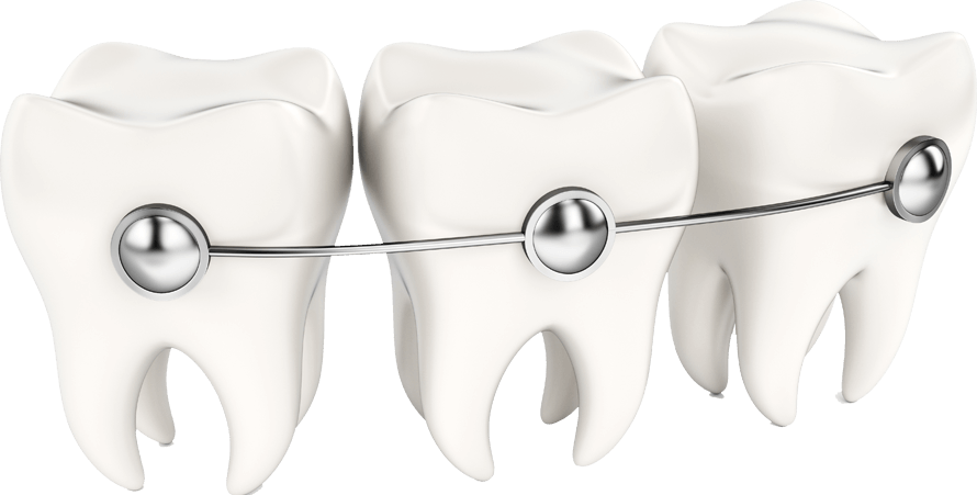 WHAT-ARE-INSIGNIA-BRACES
