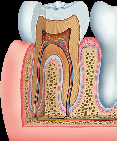 bone graft for Implant Houston