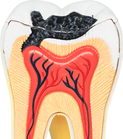 toothache causes in Houston