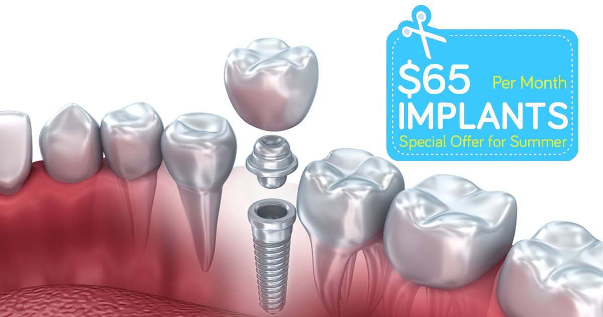 Dental implant cost Houston