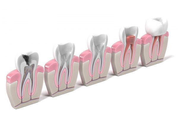 alternative-root-canal-houston