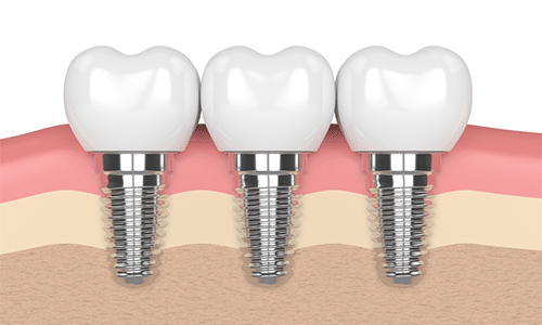 Dental-Implants-Omega-Dental-Houston
