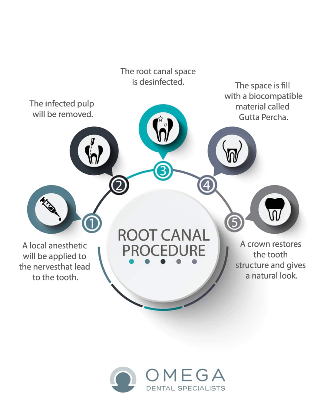 Infographic-root-canal-Omega-Dental-Houston