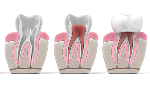 Is There an Alternative to Root Canal Treatment?