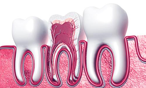 root-canal-omega-dental-Houston