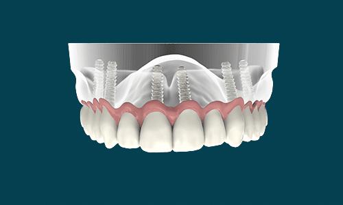 dental-implant-Omega-Dental-Houston