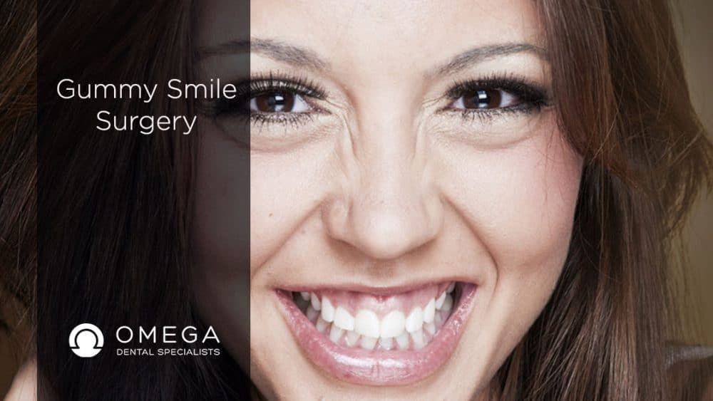 Gummy-smile-surgery-cost