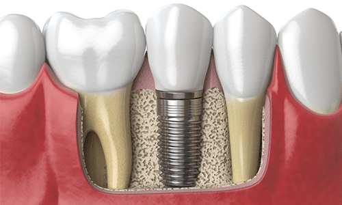 Ridge Augmentation and Sinus Lift