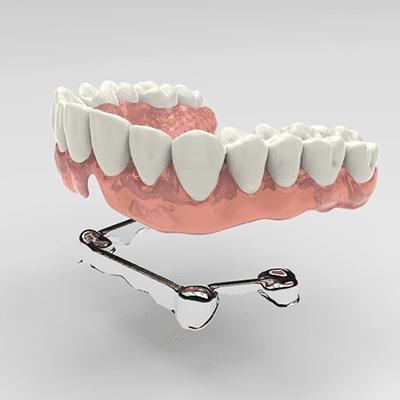 implant-over-denture-Houston