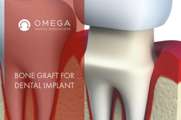 Do I Need Bone Graft For Dental Implants?