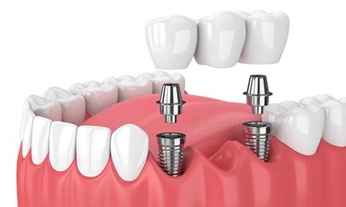 Dental-Implants-Evaluation-Houston