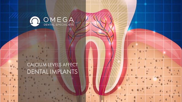 How Does Calcium Level Affect My Dental Implants?