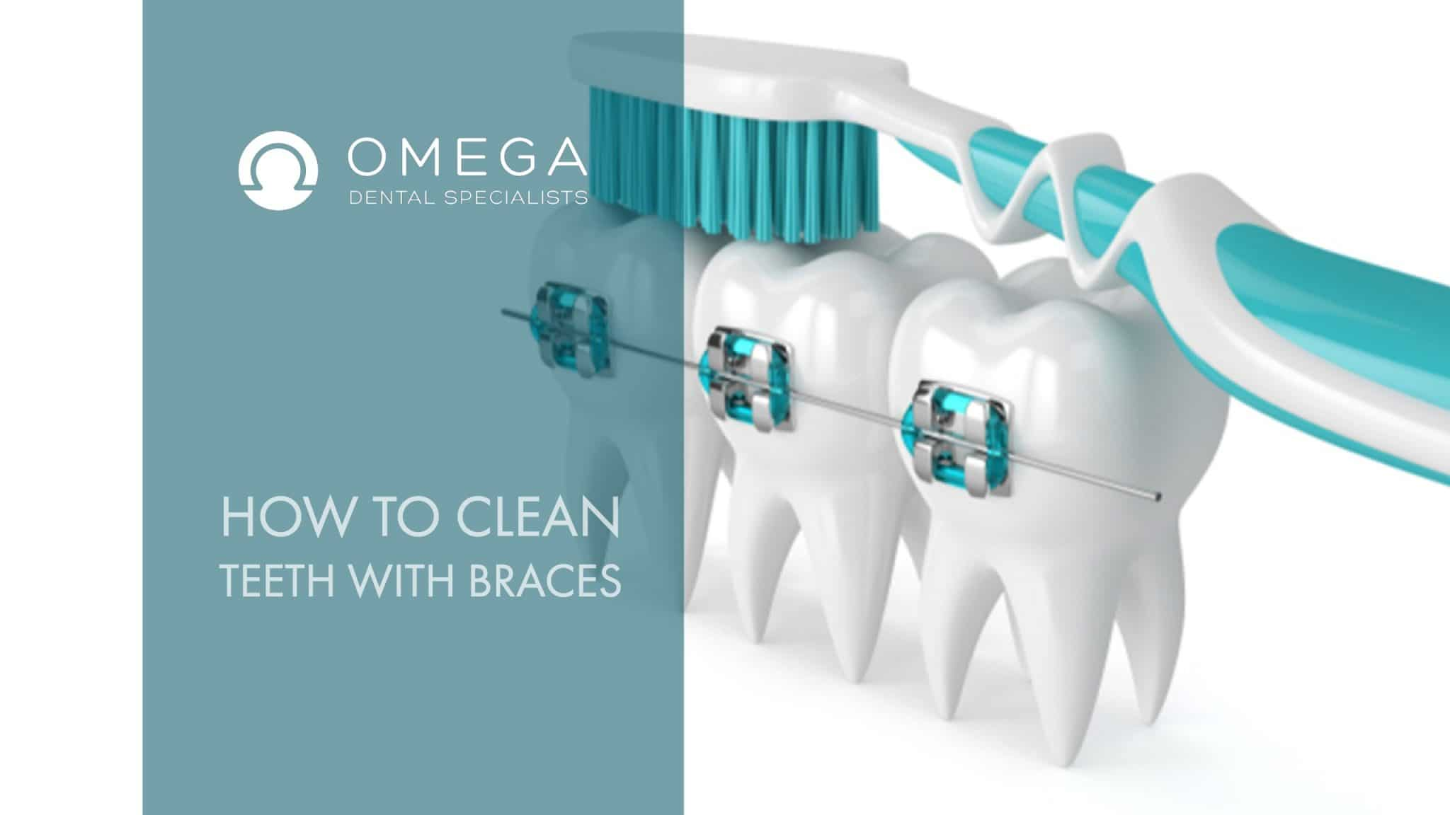 How Do You Clean Your Teeth With Braces?   Omega Dental Houston TX