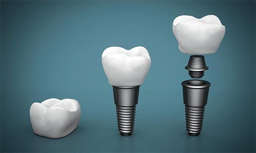 Calcium Levels Affect Dental Implants Omega Dental
