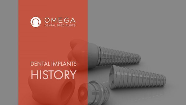 How Long Have Dental Implants Been Around?