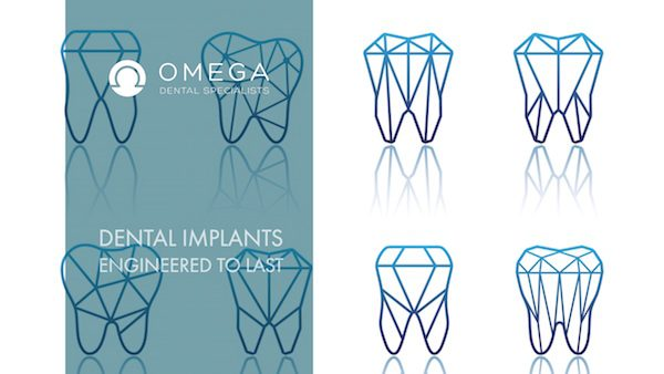How Are Dental Implants Engineered to Last?