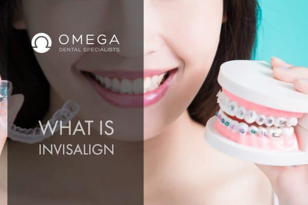 What you need to know about Invisalign Houston