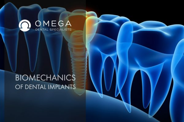 Biomechanics-Dental-Implants