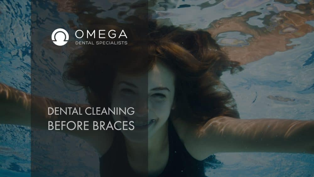 Dental-Cleaning-Braces