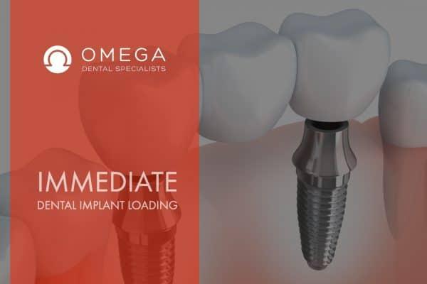 Immediate-dental-Implant-Loading-Houston