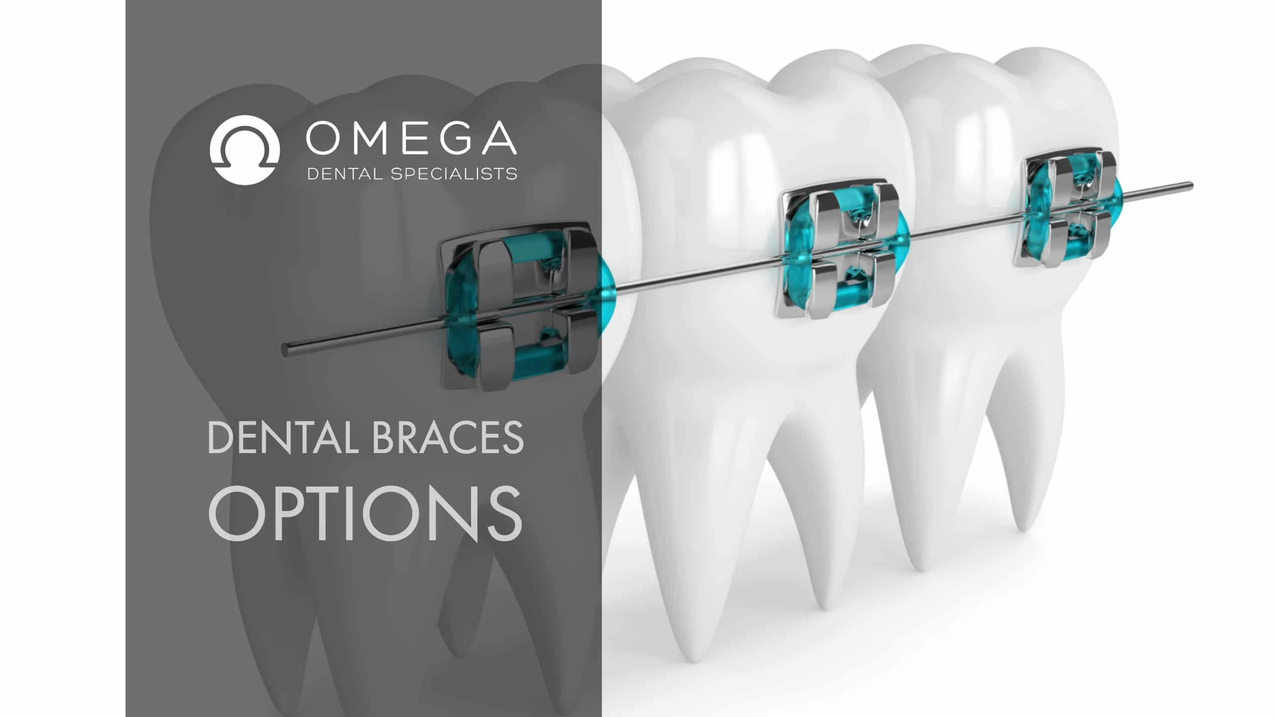 What Are The Dental Braces Options? | Omega Dental Houston TX