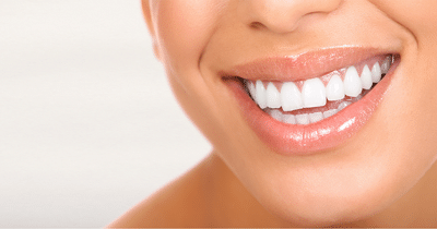Cost of Invisalign Express