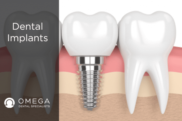 Why Did I Choose Dental Implants?