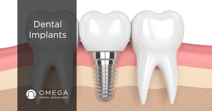 Why-Dental-Implant-Houston