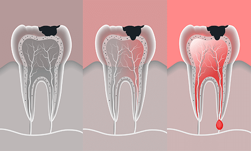 tooth-infection