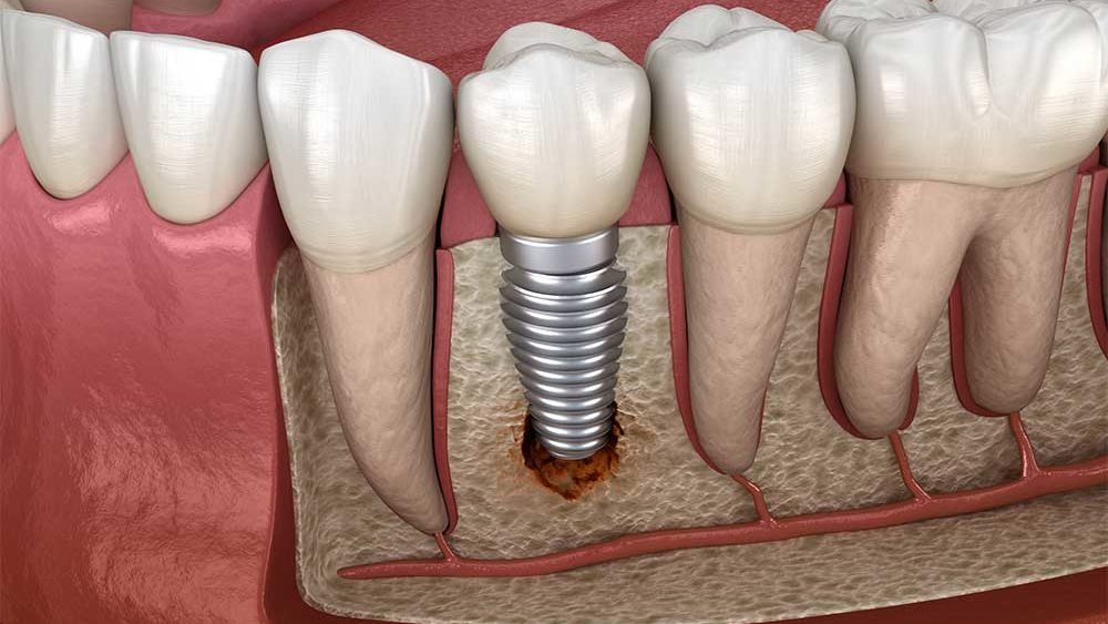 Implants Failure