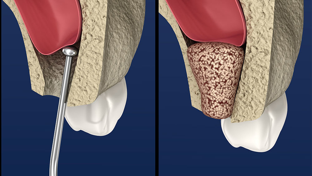 Bone Graft Materials Cost And Procedure Omega Dental Houston Tx