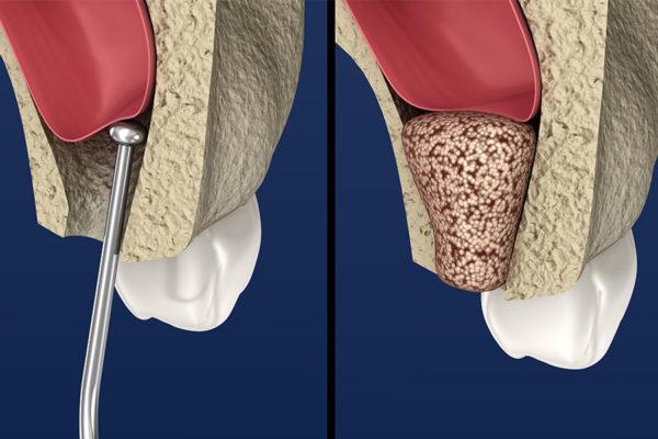 Bone Graft: Materials, Cost and Procedure
