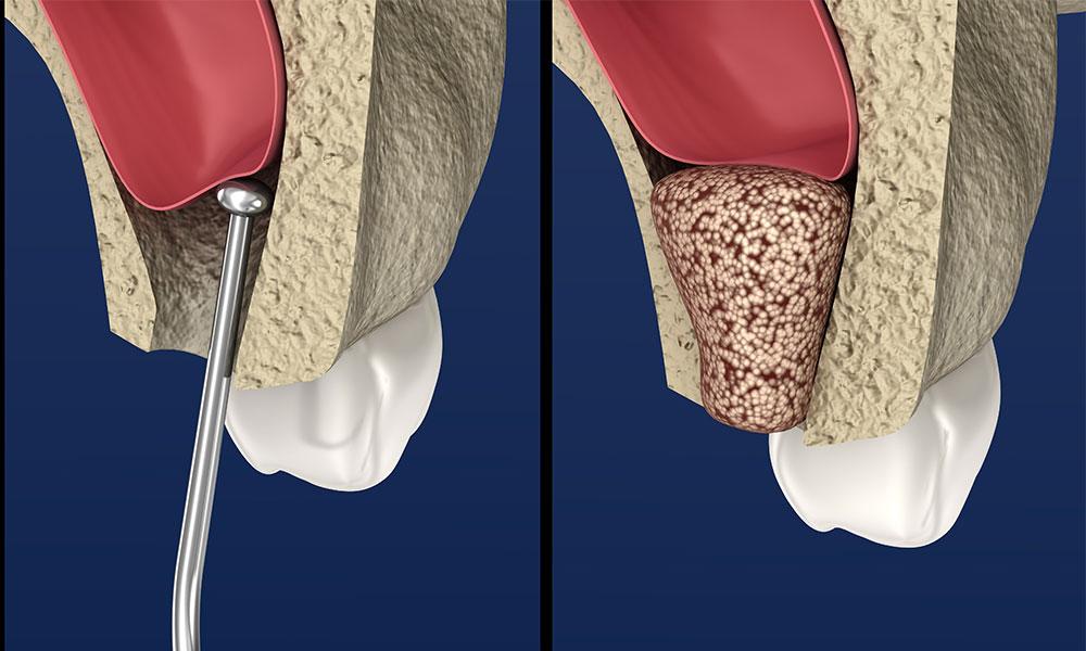 Bone Graft Materials Cost And Procedure Omega Dental Houston Tx