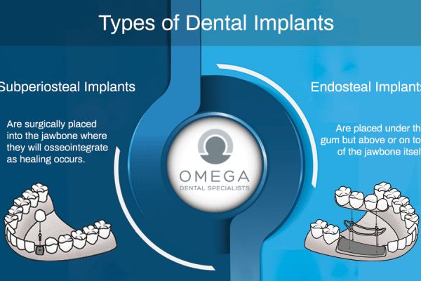 Dental Implants Options