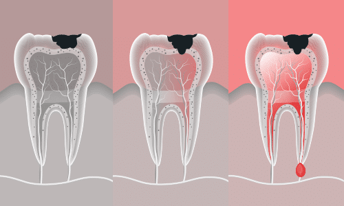 root-canal-treatment-Houston