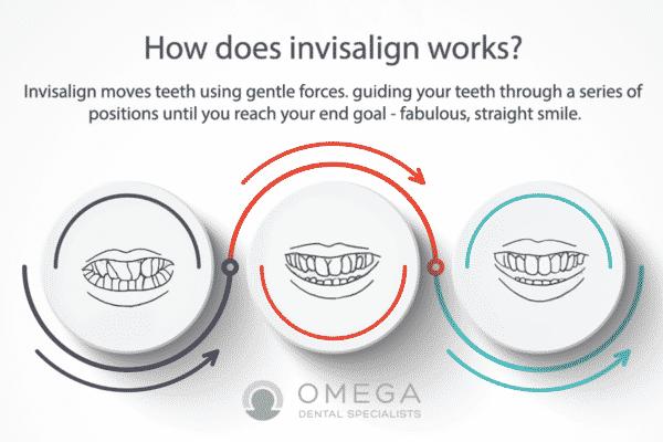 Infographics-Invisalign-Omega-Dental-Houston