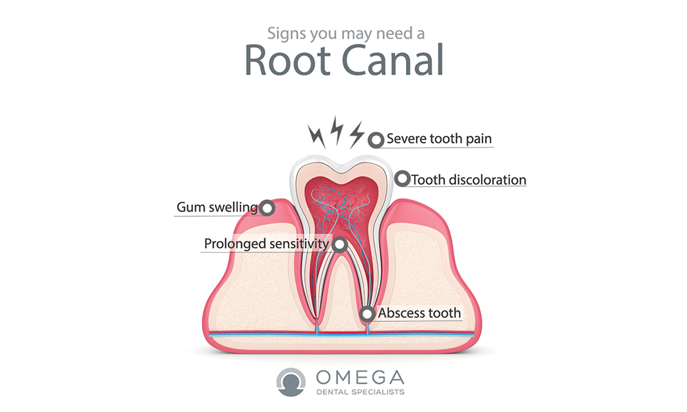 why do you need root canal