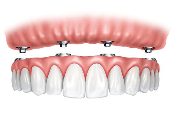 all-on-4-Omega-dental-Houston