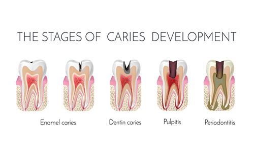 stages-Abscess-tooth-Omega_dental