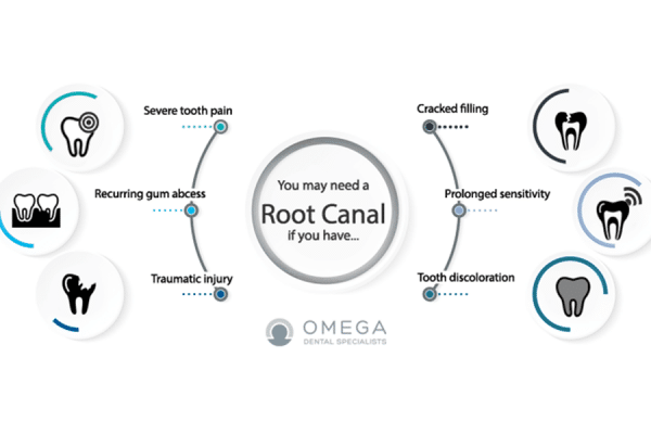 Infographic-root-canal-indication