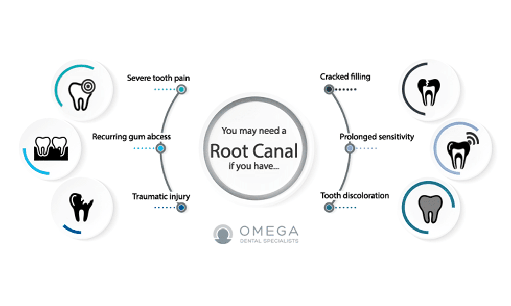 Cost of Root Canal in Houston in 2019 | Omega Dental Houston TX