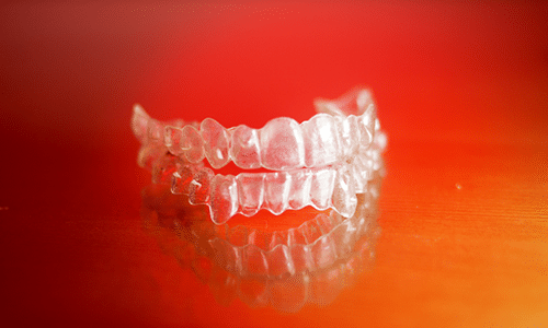 Removable or Bonded Retainers After Braces