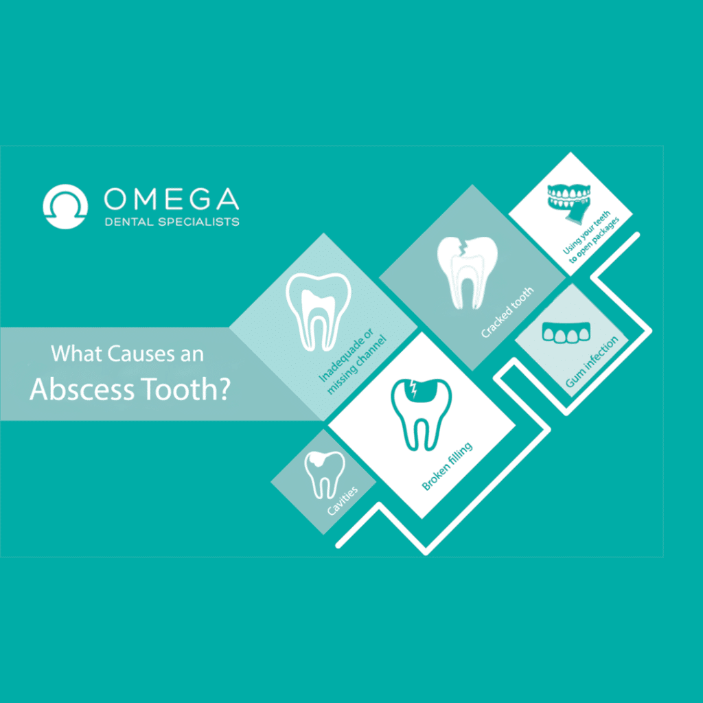 Abscessed-tooth-Omega-Dental-Houston