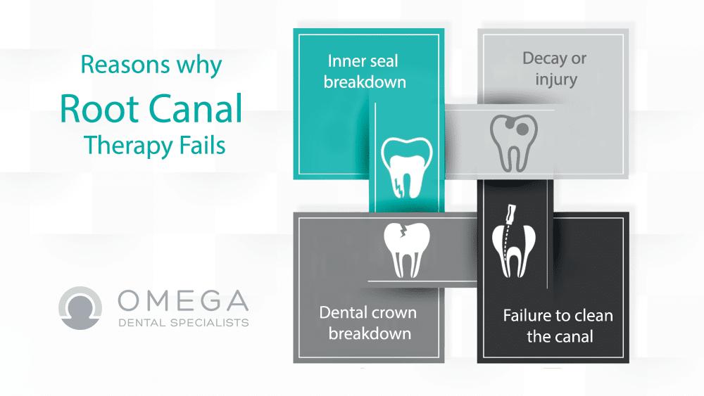 Root Canal retreatment Omega Dental Houston
