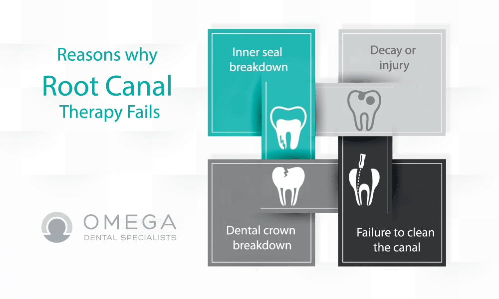 Failed Root Canal Symptoms Omega Dental Houston Tx