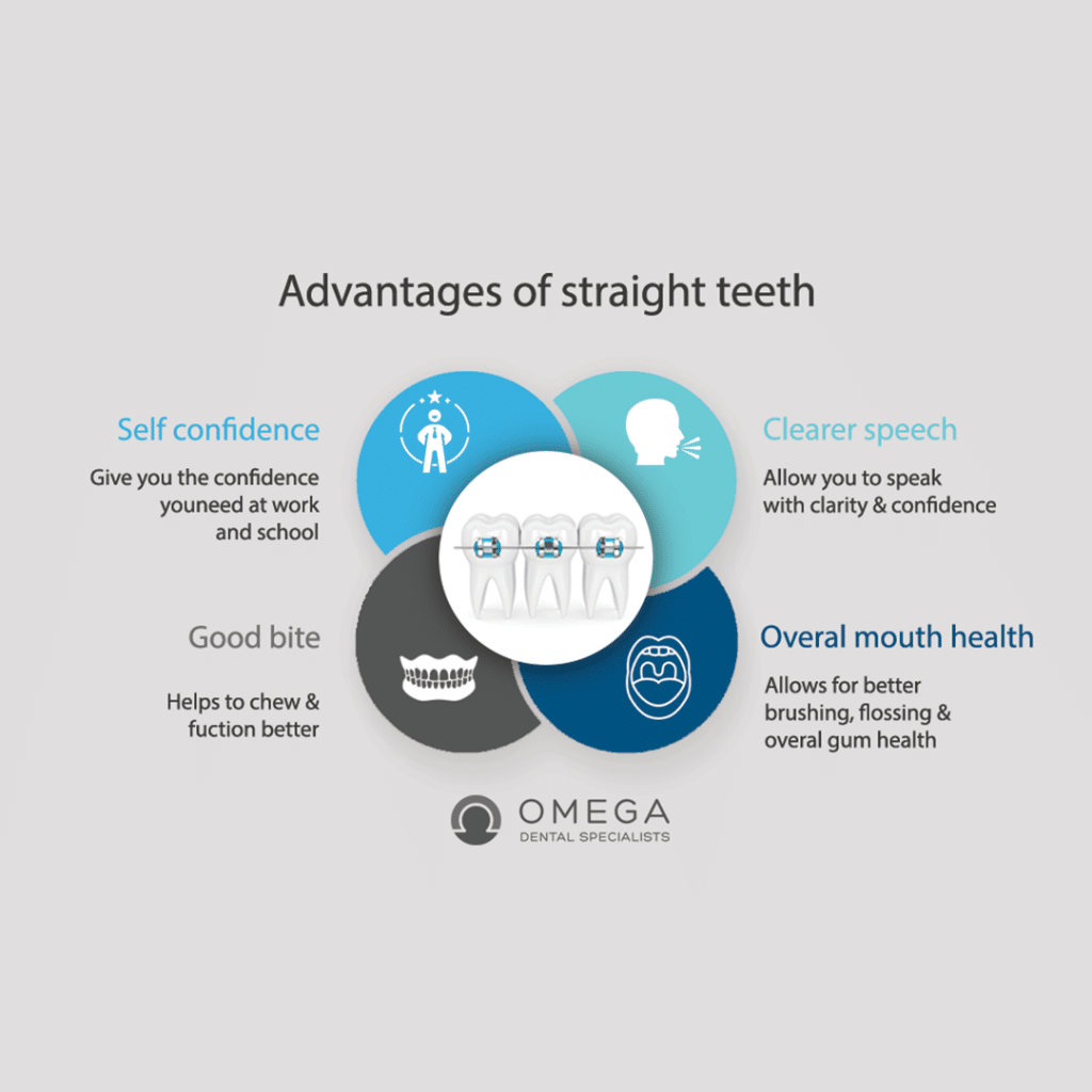 advantages of Braces Omega Dental Houston