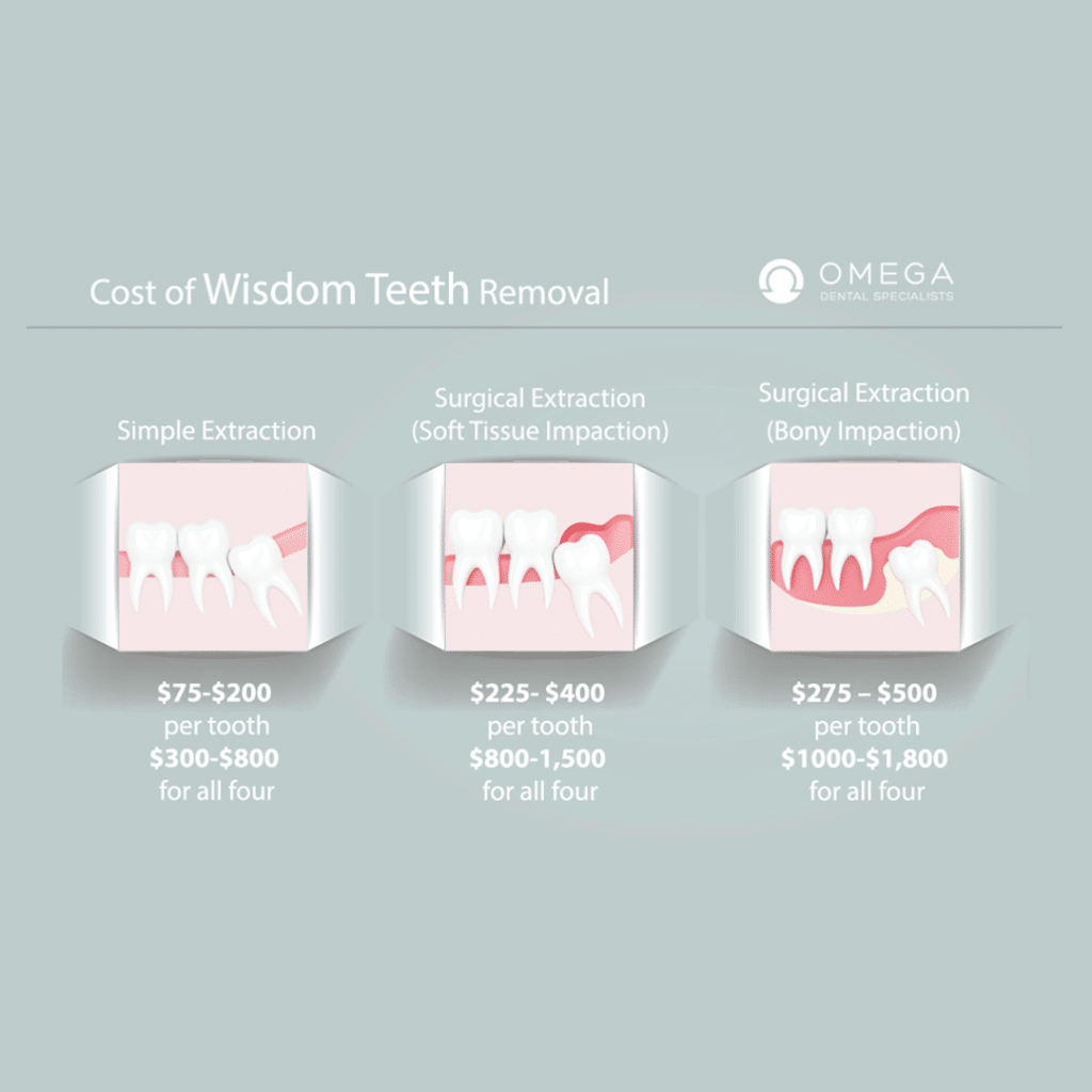 cost of Wisdom Teeth Removal Houston