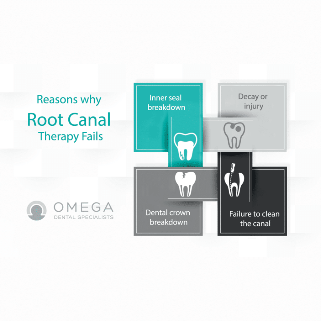 root-canal-retreatment-Omega-Dental-Houston